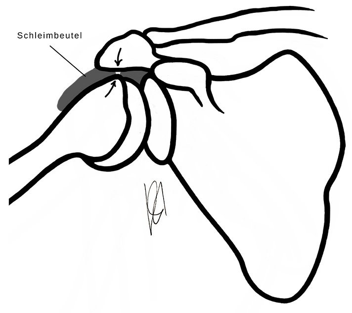 Schleimbeutel